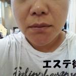 ヘアーサロン&シェービング・エステいちりき リフトUPコース