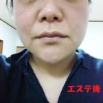 ナッツ〜ネイル、エステ、マッサージ、ブライダル~ 日焼けケア